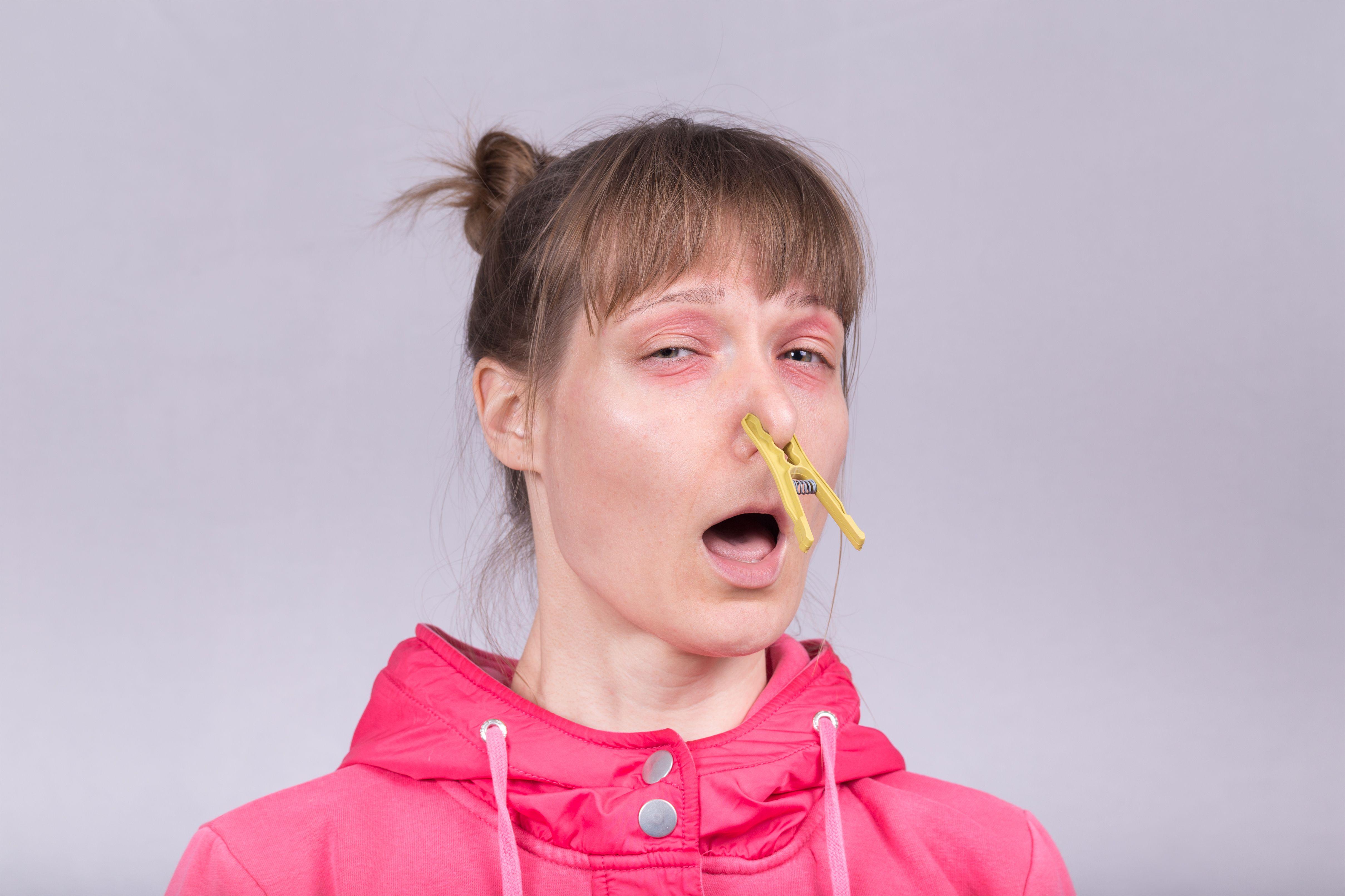 Аллергия, стоп!